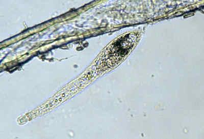 Long protozoan